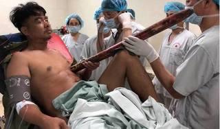 Trắng đêm căng mình cứu nam thanh niên bị thanh sắt đâm thấu ngực