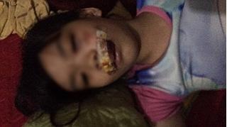 Hà Tĩnh: Chó lăn đùng ra chết sau khi cắn 5 người