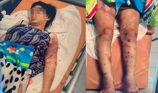 Thai phụ bị tra tấn đến sẩy thai: 'Chúng dùng keo nấu chảy và khò gas dí vào người tôi'