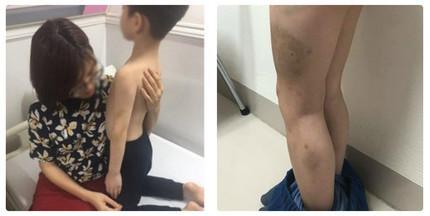 Hà Nội: Bé trai 6 tuổi nghi bị mẹ kế đánh đập thâm tím người?