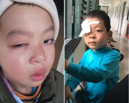 Thông tin mới nhất vụ cô giáo nghi đánh học sinh lớp 1 chấn thương mắt ở Lạng Sơn