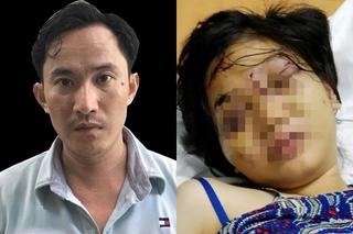 Kẻ chủ mưu giam giữ, tra tấn cô gái 18 tuổi đến sảy thai bị bắt