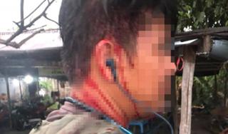 Thắc mắc tô hủ tiếu 100 nghìn, người đàn ông bị chủ quán gọi người đánh chảy máu đầu