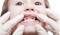 Nha sĩ cảnh báo sai lầm của cha mẹ khiến con hỏng răng vĩnh viễn