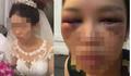 Sự thật bức ảnh cô dâu bị đánh thâm mặt vì cự tuyệt hôn chú rể trong đám cưới