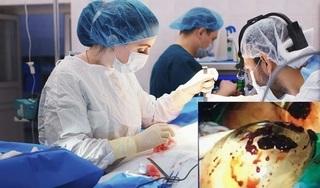 Nữ doanh nhân Quảng Ninh gặp biến chứng kinh hoàng khi nâng ngực tại nước ngoài