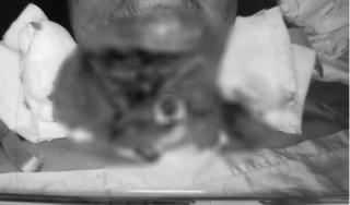 Tai nạn hy hữu khiến người phụ nữ đứt ngang vùng cổ, suýt đứt lìa