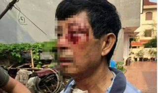Hải Phòng: Điều tra nghi vấn đại úy công an đánh bác ruột nhập viện