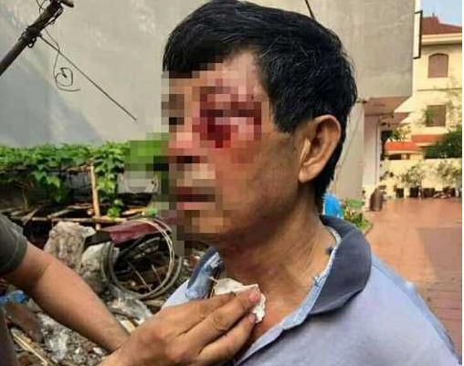 Đại úy công an TP Hải Phòng nghi hành hung bác ruột đến nhập viện