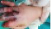 Nghệ An: Bé trai bị máy ép mía kẹp dập nát bàn tay