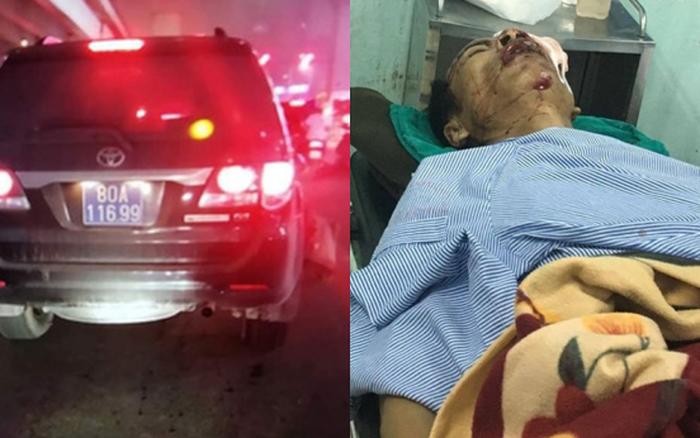 Sức khoẻ của nạn nhân bị thượng sĩ công an lái xe biển xanh tông giờ ra sao?