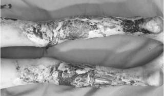 Bé 9 tuổi bị hoại tử đôi chân vì đắp thuốc nam chữa bỏng