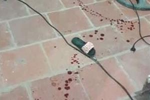 Thông tin mới nhất vụ bé gái bị đối tượng chém trọng thương ở Thanh Hoá