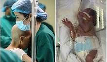 Sản phụ ung thư vú giai đoạn cuối vẫn chưa được nhìn mặt con