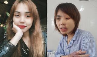 Dung nhan cô gái bị cựu thiếu úy công an tạt axit sau 9 lần phẫu thuật
