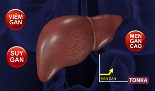 Bài thuốc Đông y thế hệ 2 đặc trị viêm gan, men gan cao