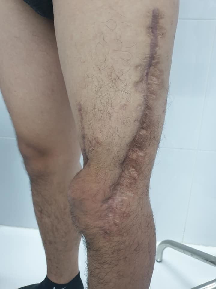 Tâm sự xúc động của bác sĩ 7 lần mổ để cứu đôi chân cho 1 bệnh nhân 2