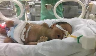 Người mẹ ung thư giai đoạn cuối ở Hà Nam vẫn chưa thể gặp con như dự kiến ban đầu