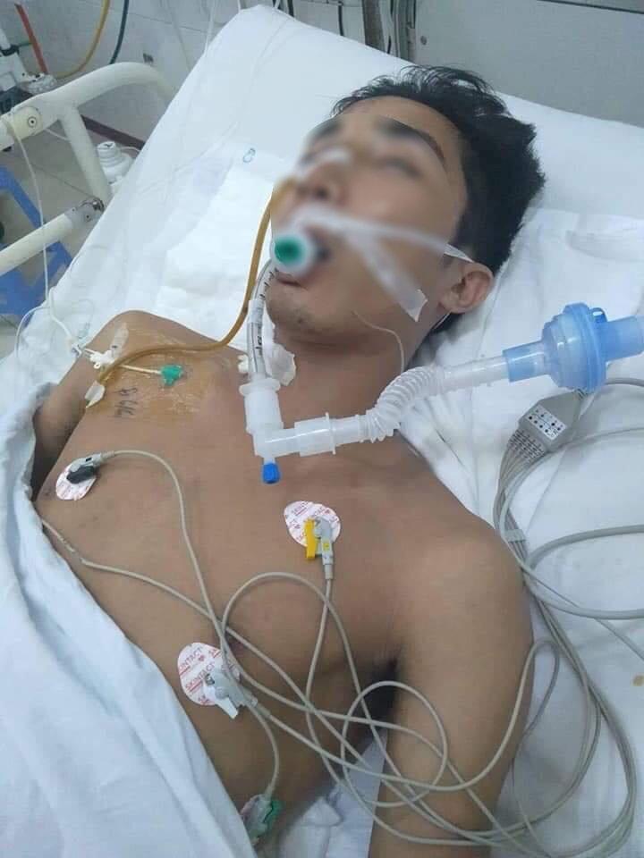 Vụ thanh niên chở bạn gái đâm vào cột điện chấn thương nặng ở Hà Nam: