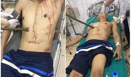 Tai nạn hy hữu khiến người đàn ông Quảng Ninh bị cây cọc xuyên thấu bụng