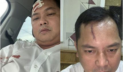 Vụ giang hồ vây xe công an ở Đồng Nai: Người bị đánh phải khâu 13 mũi nói gì?