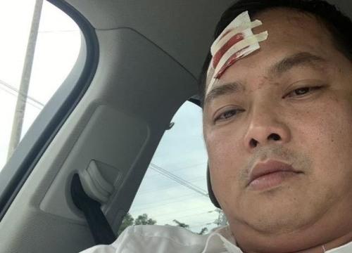 Vụ giang hồ vây xe công an: Người bị đánh khâu 13 mũi muốn khởi tố vụ án