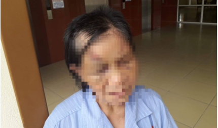Quảng Ninh: Điều tra nghi án cháu ngoại đánh bà gãy 5 xương sườn