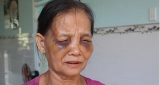 Mẹ chồng bị nàng dâu đánh bầm tím mặt mày chỉ vì... cái bô