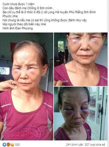 Con dâu đánh mẹ chồng bầm tím mặt mày chỉ vì... cái bô
