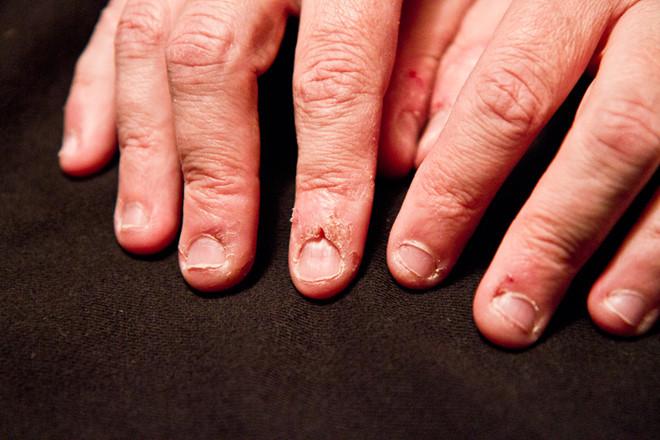 Những hiểm họa bất ngờ từ thói quen cắn móng tay nhiều người mắc phải