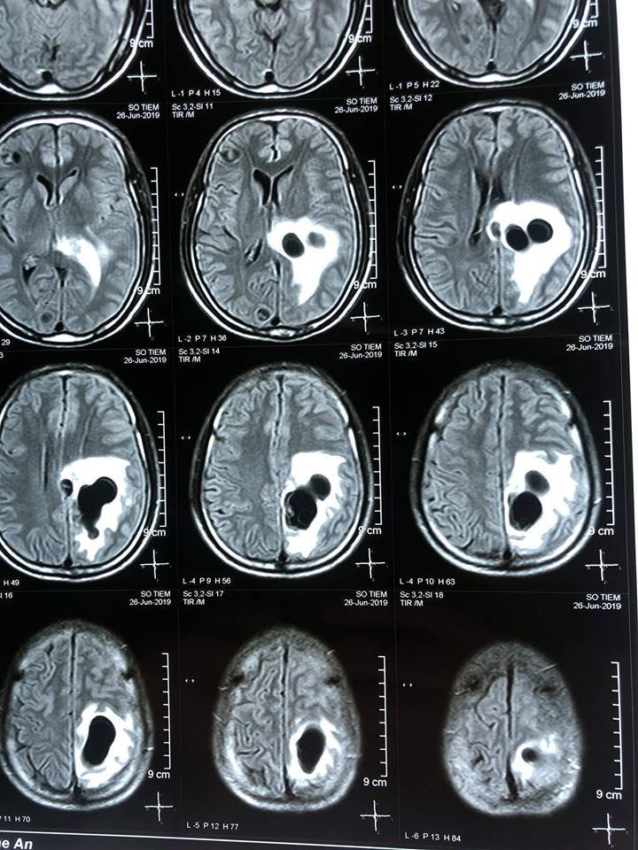 Kinh hoàng: Người đàn ông Nghệ An có 5 tổ sán trong não