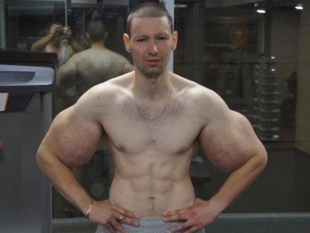 Nghiêp tiêm dầu để có bắp tay 'siêu to khổng lồ', chàng trai phải lên mạng cầu cứu