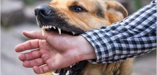 Bé 10 tuổi thiệt mạng vì bị chó dại cắn 1 vết nhỏ