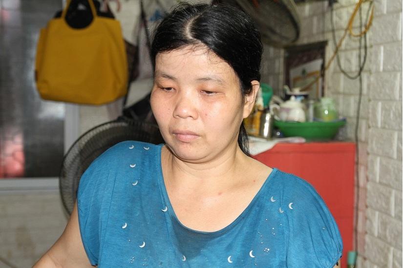 Đau thương phu rác:  Mẹ già 86 tuổi trắng đêm giấu nước mắt trông con tàn phế sau tai nạn kinh hoàng