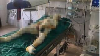 Vụ phóng hỏa thiêu sống cả gia đình ở Sơn La: Đau lòng thêm có nạn nhân tử vong