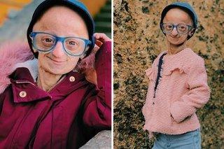 Hiếm gặp: Cô gái 20 tuổi có ngoại hình như bà cụ 140 tuổi