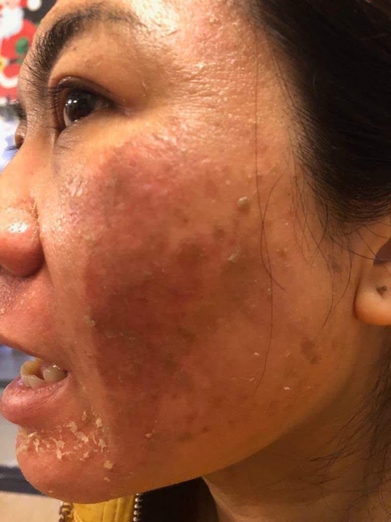 Khách hàng sau vài tháng sử dụng đều xuất hiện triệu chứng đau rát, mất cấu trúc da
