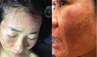 Nhiều khách hàng bị biến chứng nặng khi dùng mỹ phẩm Dimanlaier