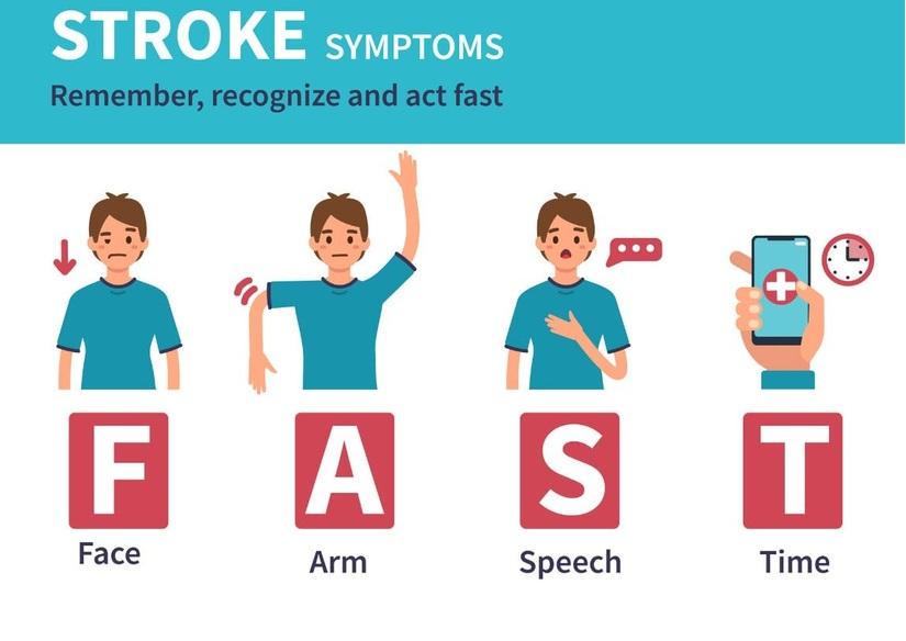 dấu hiệu của bệnh đột quỵ và tai biến nhẹ