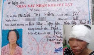 Sự thật vụ thai phụ câm điếc ở Thanh Hóa bị nam thanh niên đánh nhập viện