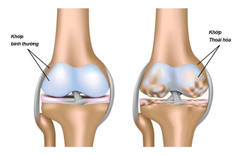 Thoái hóa khớp gây ra đau nhức xương khớp