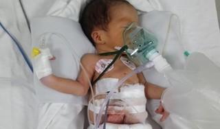Bé sinh non 32 tuần đã phải trải qua liên tiếp 2 ca phẫu thuật
