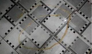 Kinh hãi sán dài hơn 2m trong cơ thể người đàn ông Nghệ An