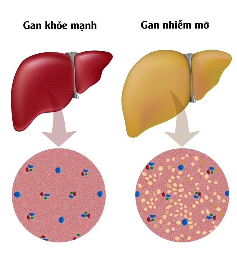 Quá trình tích tụ mỡ trong gan gây ra gan nhiễm mỡ không do rượu