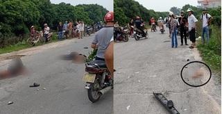 Tai nạn kinh hoàng khiến nam thanh niên ở Hưng Yên đứt lìa cánh tay