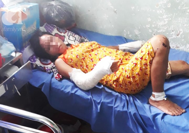 Chồng đánh vợ đang mang thai 7 tháng gãy tay chân, vỡ nền sọ