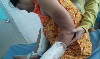 Gã chồng hờ đánh vợ đang mang thai gãy tay chân bất ngờ bỏ trốn