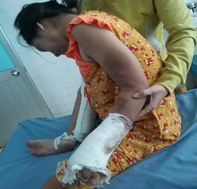 Bị khởi tố, gã chồng hờ đánh vợ đang mang thai gãy tay chân bất ngờ bỏ trốn