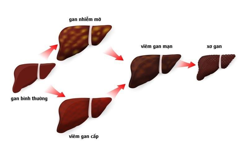 Gan nhiễm độc dần dần sẽ dẫn đến viêm gan mạn tính, xơ gan, ung thư gan
