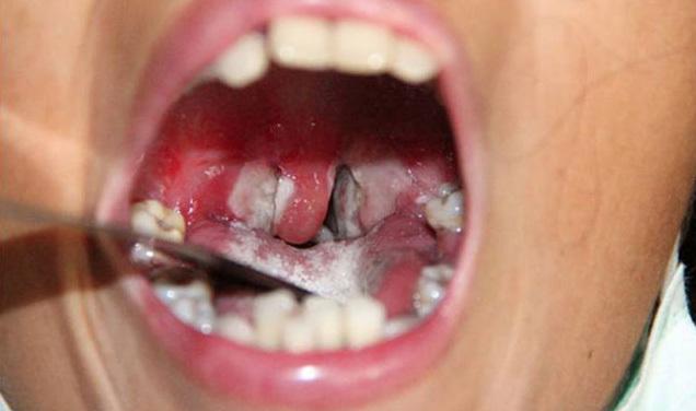 Bé 6 tuổi tử vong vì bệnh bạch hầu và dấu hiệu nhận biết sớm 3